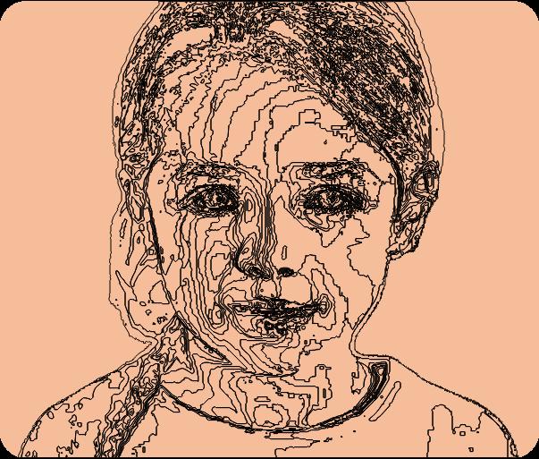 deux enfants avec troubles dys